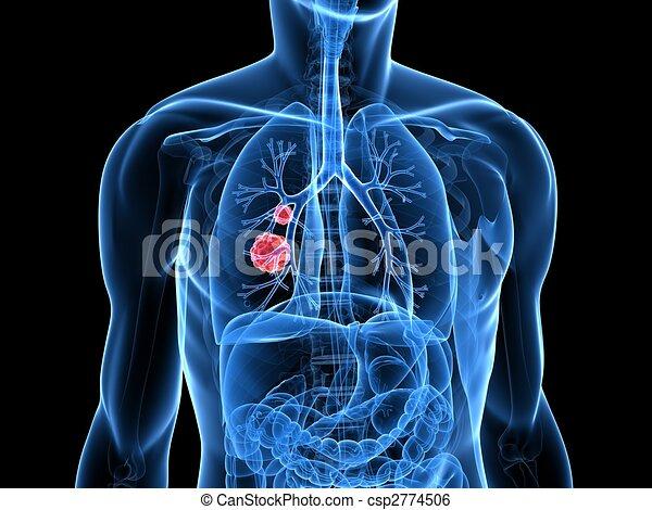 lung tumor - csp2774506