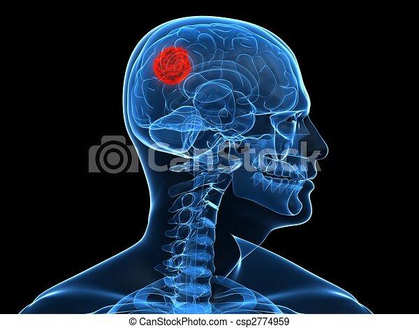cerebral tumor - csp2774959