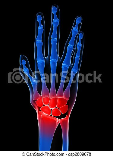 arthritis - csp2809678