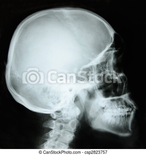photo of side x-ray picture of human skull in natural colors - csp2823757