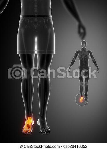 ANKLE black x--ray bone scan - csp28416352