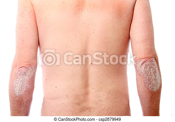psoriasis on both elbows - csp2879949