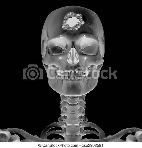 3D Radiograph with head injury - csp2902591