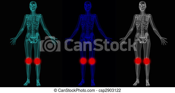 Human anatomy body with suggestion of joint problems - csp2903122