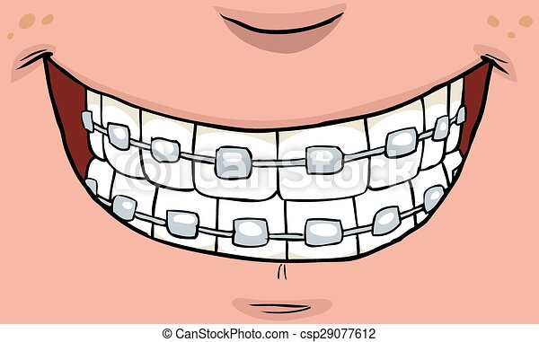 Orthodontics Clip Art Teeth Brace