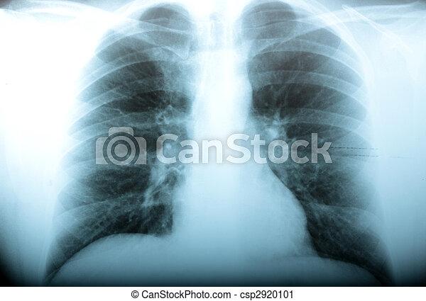Radiology - csp2920101