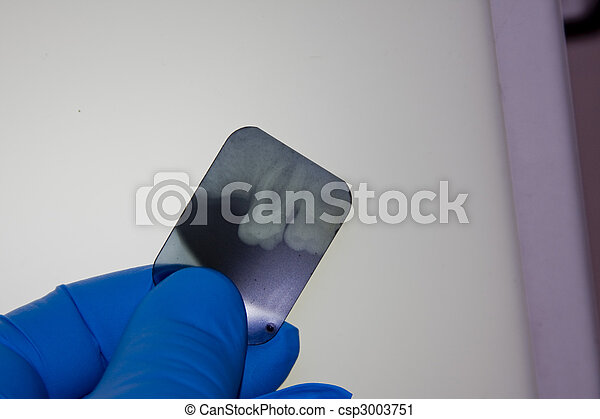 Dentist examining dental X-ray - csp3003751