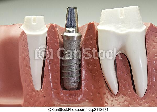 Dental Implant Model - csp3113671