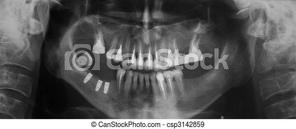 Dental X-ray - csp3142859
