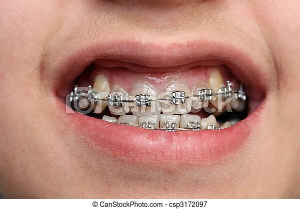 niños, dientes, con, Fierros - csp3172097