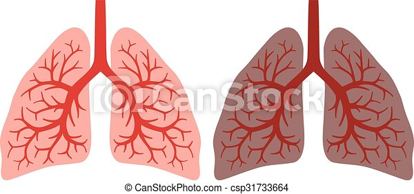 Clipart of Lungs. Effect after smoking and disease - Lungs. Effect ...