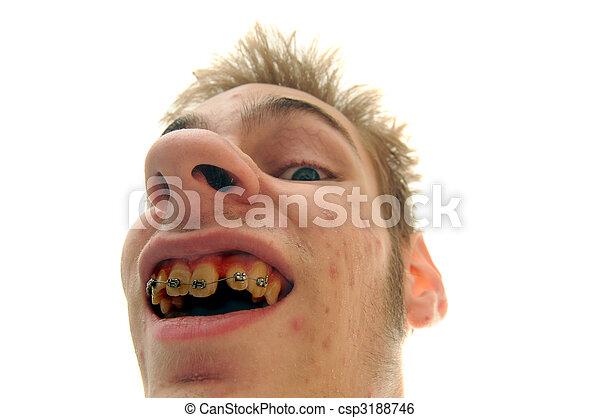Bad Breath Oral Hygiene - csp3188746
