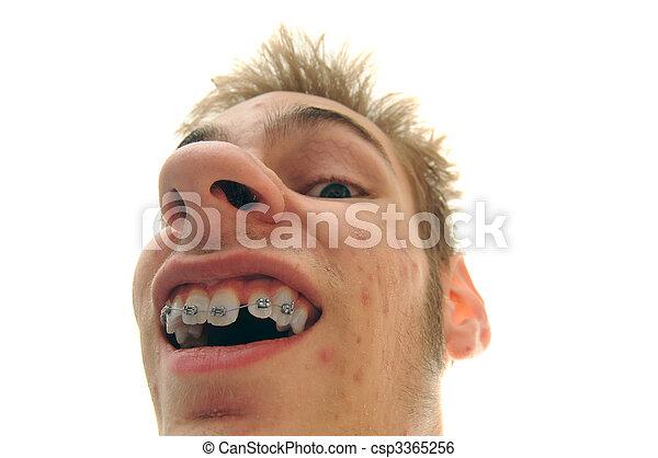 Showing off braces - csp3365256