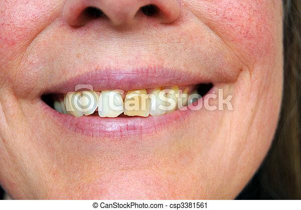 photographies de tach dent personne sourire a tach jaune dent csp3381561. Black Bedroom Furniture Sets. Home Design Ideas
