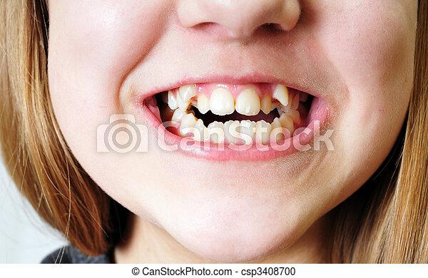 坏, 牙齒 - csp3408700