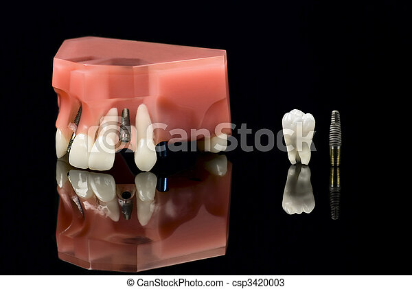 Wisdom tooth, Implant and teeth model - csp3420003