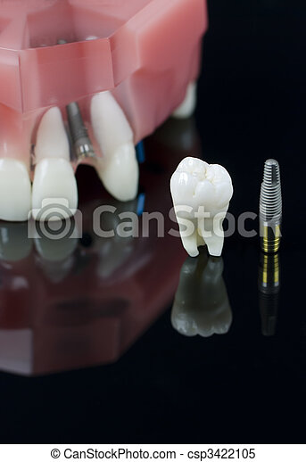 Wisdom tooth, Implant and teeth model - csp3422105