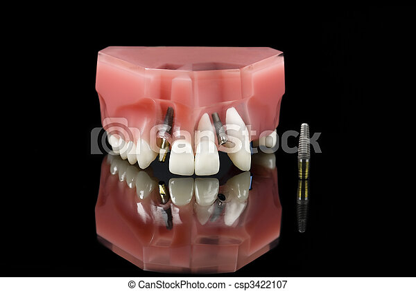 Dental implant and teeth model - csp3422107