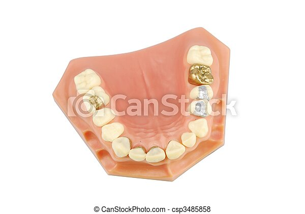 Dental model (with different treatments) - csp3485858