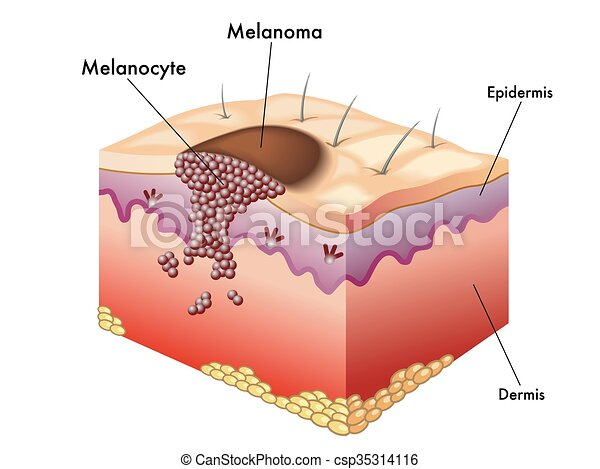 Vector Clip Art of melanoma - medical illustration of the ...