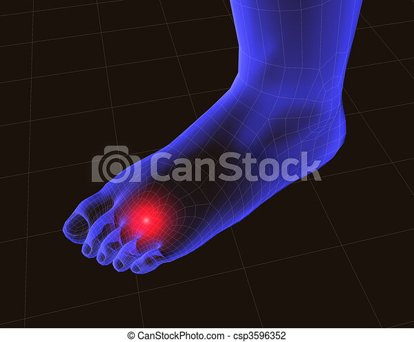 3d feet with pain  - csp3596352