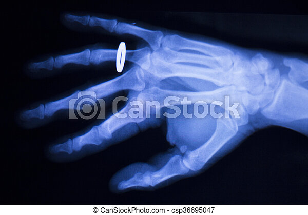 Hand and finger injury medical x-ray test scan result for adult patient wearing gold wedding ring.