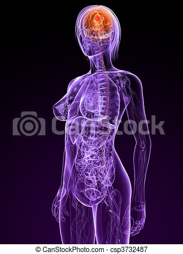 cerebral cancer - csp3732487