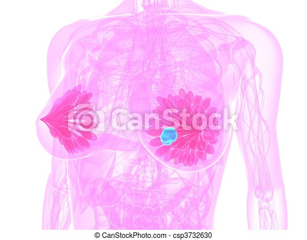 breast cancer illustration - csp3732630