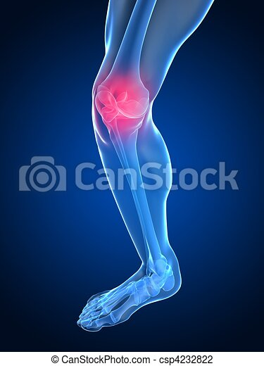 painful knee joint - csp4232822