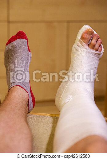 Broken ankle in hwite gypsum