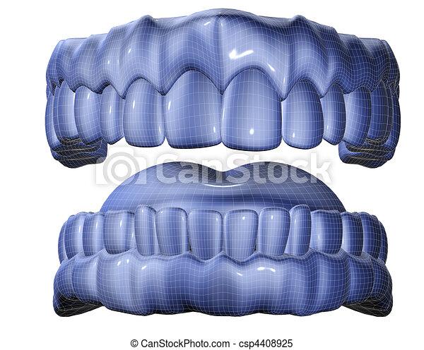 denture - csp4408925