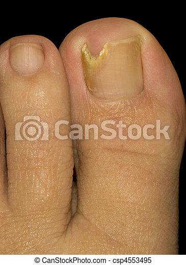 Em uma perna em um dedo um fungo do que tratar