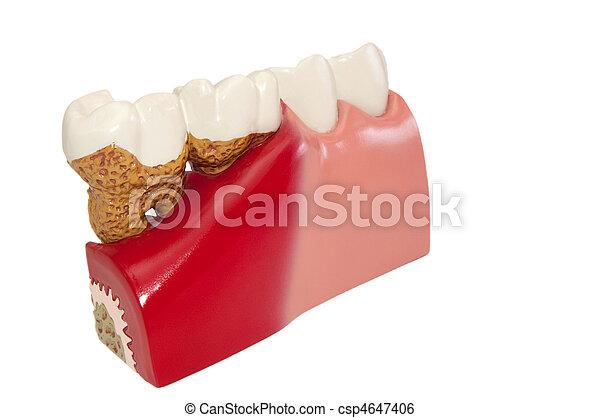 Dental diseases. - csp4647406