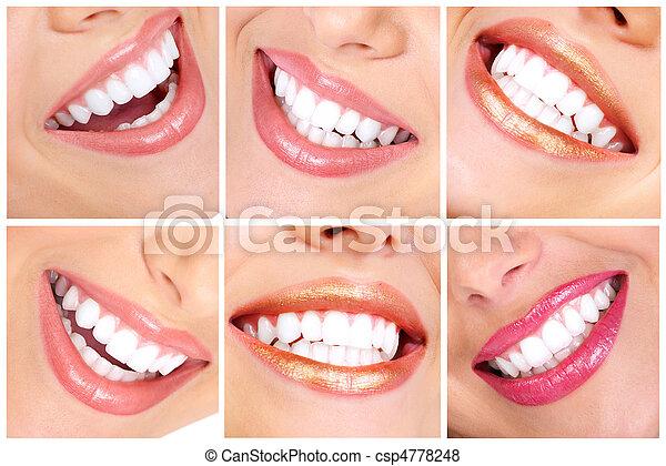 牙齒 - csp4778248
