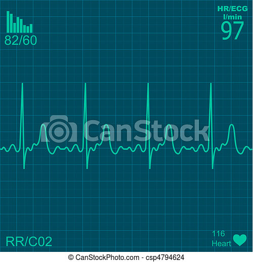 Heart monitor - csp4794624