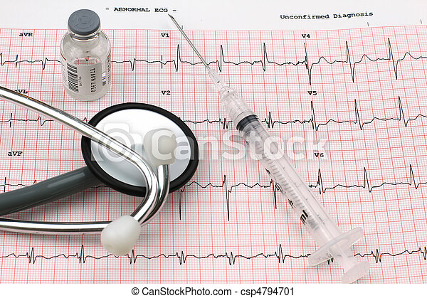 EKG Printout - csp4794701