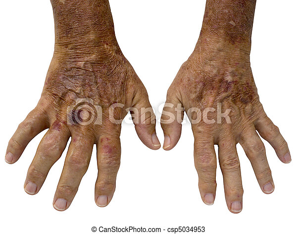 Elderly Male hands with Rheumatoid Arthritis and and spots - csp5034953