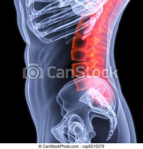 spine - csp5215379