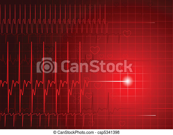EKG flatline - csp5341398