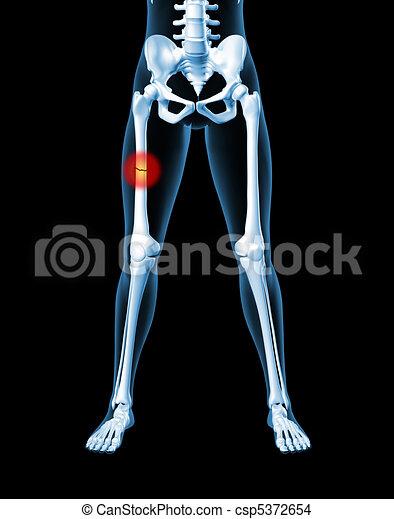 ... render of a medical female skeleton with a broken leg bone highlighted