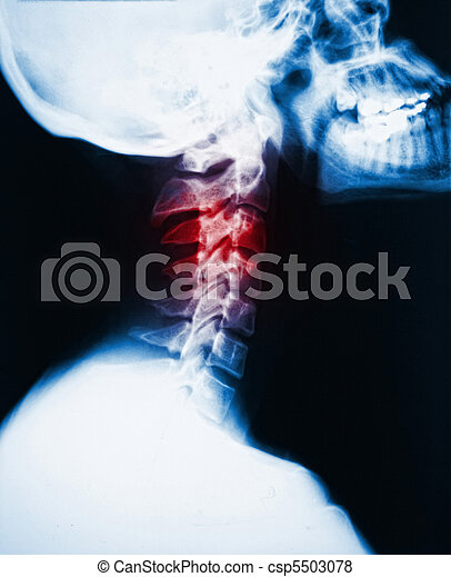 neck x-ray and pain - csp5503078
