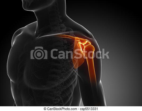 shoulder pain - csp5513331