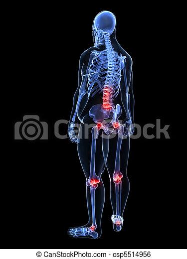 painful joints / backache  - csp5514956