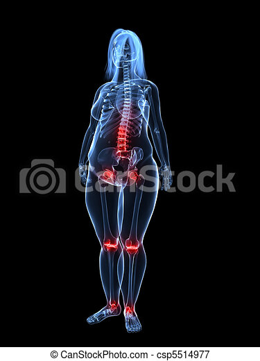 painful joints / backache  - csp5514977