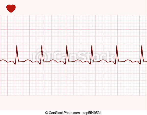 Normal electronic cardiogram. EPS 8 - csp5549534