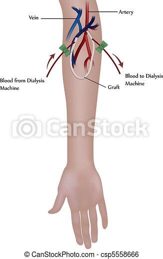 Hemodialysis. Renal insufficiency - csp5558666