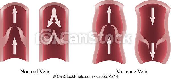 Varicose vein - csp5574214