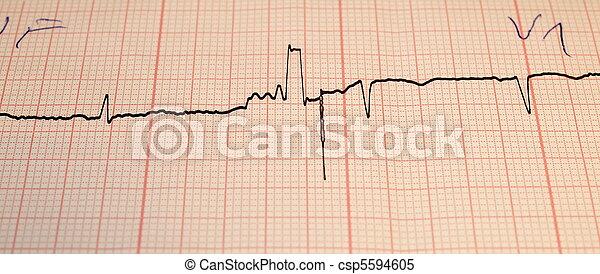 Electrocardiogram ecg - csp5594605