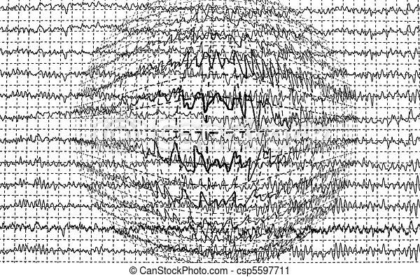 Brain Waves Art Brain Wave Encephalogramme Eeg