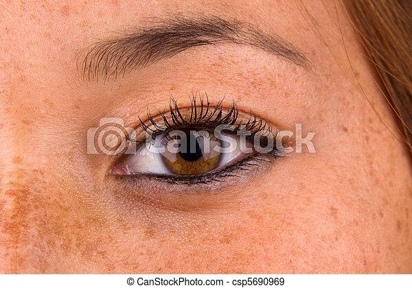 Sun Damaged Skin - csp5690969